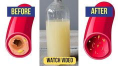 Only a Glass of This Juice will Remove Clogged Arteries And Control Blood Pressure - YouTube