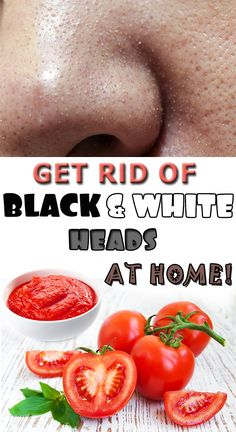 How you get rid of black and white heads on your face at home