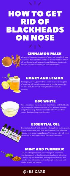 Remove Blackheads From Nose, How To Remove Pimples, Removal Of Blackheads, Remedies For Blackheads, Blackheads On Face, Clear Blackheads, Blackhead Remedies, Blackhead Mask, Natural Blackhead Remover