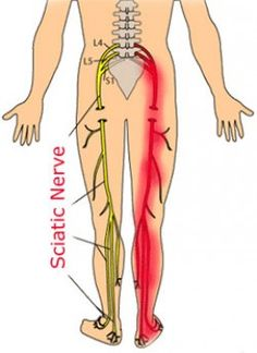 What's the Deal With Sciatica? A lot! The Sciatic nerve connects to the tailbone area of the spine and flows down the leg your ankle. Spinal troubles, excessive sitting or congestion of the buttocks area can cause or increase the pain of the sciatic nerve Sciatica Relief, Sciatica Exercises, Sciatic Pain, Sciatic Nerve, Nerve Pain, Pain Relief, Sciatica Symptoms, Treating Sciatica, Massage Therapy