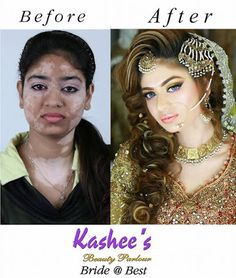 Kashees beauty parlour perfect skin transformation of girl http://www.fashioncluba.com/2017/02/kashees-new-look-makeup-and-hair-styles-for-bridal.html