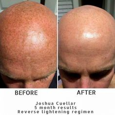 REVERSE Lightening Regimen  | - From Josh:'When my wife started with Rodan + Fields and asked if I would use the products, I was skeptical to say the least. But I can now say they're not only clinically-proven, but Cuellar tested and approved!But for me this is much more than skincare. I've loved watching my wife spark again as we have found an outlet in a crazy season of life. This business is a vehicle that has big potential to allow people's passions to become a reality. It's been a blast…