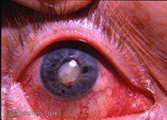 Chronic uveitis(anterior) led to neovascularization of the iris, iris atrophy and secondary cataract