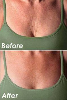 This is what our Defining Gel can do!! www.LouannWrapsYouSkinny.com  Inbox me! #wrinkles #skincare #skincaretips