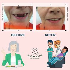 Can you see the unbelievable difference?😲😀😁 Denture Square gains new clients daily due to our competency in Dental Prosthetics. Get your smile and your confidence back with us. Call now to book an appointment. #denture #dentistry #dentist #dentaltechnician #odontologia #dentallab #dentures #dentalart #implant #teeth #dentallaboratory #odontology #dentista #dentalphotography #smile #dentalclinic #dentalcare #crown #odonto #denturesquarebrisbane #cosmeticdentistry #prosthodontics #australia Dental Group, Dental Art, Dental Photography, Dental Technician, Dental Laboratory, Cosmetic Dentistry, Brisbane, Clinic, Teeth