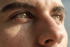 A Fresh Pair of Eyes:  Crow's feet, dry eyes and eye strain, dark under eye circles, or puffy eyes? Ancient ayurvedic healers identified dozens of causes that can bring eyes to grief. Here is our list of Ayurvedic Solutions to Eye Problems! #ayurvediceyecare #ayurvedicskincare #naturaleyecare #ayurvedicview #healthyeyes