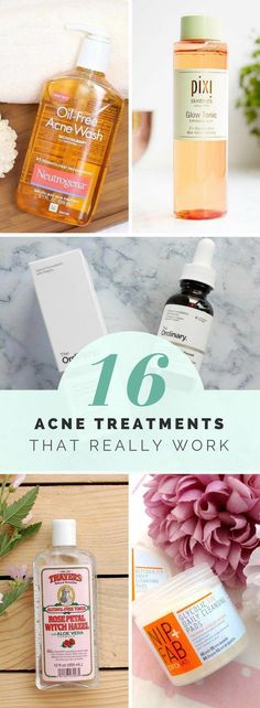 Acne Treatment Products That Really Work – Acne Routine 101 Acne Treatment from the drugstore – best acne cleansers, best acne moisturizers, best acne spot treatment products, how to deal with acne and get rid of acne on a budget. Best Acne Cleanser, Acne Moisturizer, Best Acne Spot Treatment, Cystic Acne Treatment, Acne Treatments, Natural Treatments, Scar Treatment, Red Acne Marks, Beste Foundation