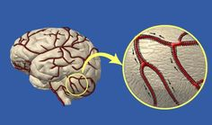 Очищение сосудов головного мозга   Golbis