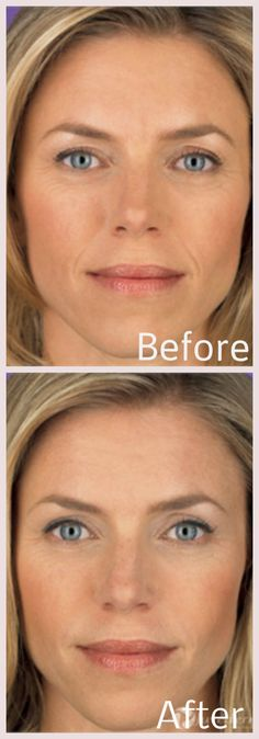 Juvéderm® is an FDA approved hyaluronic acid (HA) gel filler that improves facial wrinkles around the mouth and nose. With Juvederm, a younger, more natural looking face can be achieved in just one treatment. The treatment lasts for up to one year, after which the compound is naturally, and safely, absorbed by the body. http://derm90210.com/Juvederm#