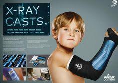 OUTDOOR BRONZE  X-RAY CASTS_FONTERRA BRANDS NEW ZEALAND, ANCHOR_COLENSO BBDO_2016