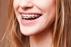 Great ideas for healthy snacks for orthodontic patients.  Remember, one of the best ways to make your treatment last longer is to break braces with sticky and hard foods! Braces Food, Kids Braces, Dental Braces, Teeth Braces, Dental Implants, Dental Care, Braces Tips, Implant Dentistry, Cosmetic Dentistry