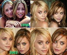 Olsen Twins plastic surgery nose refining + possible cheek implants - it would seem .