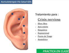 Tratamiento de acupuntura auricular para crisis nerviosas!