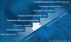 Summary of Ménière's Disease Treatment Options