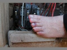 Man loses piece of toe to smart meter electric shock