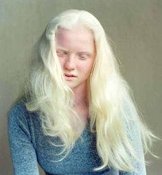 hile most people with albinism have very light skin and hair, not all do. Oculocutaneous (pronounced ock-you-low-kew-TAIN-ee-us) albinism (OCA) involves the eyes, hair and skin