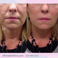 yspor Liquid Facelift, Dermal Fillers, Surgery, Cosmetics, Instagram