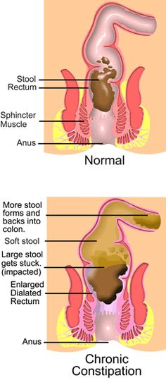 Constipation : Definition, Symptoms, Diagnosis, And Treatment - Health, Medicine and Anatomy Reference Pictures