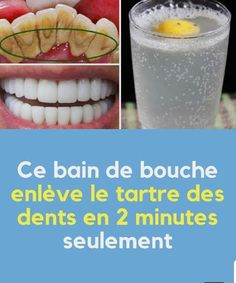 METHODE NATURELLE POUR AVOIR DES DENTS PROPRES ET BLANCHES ~ Santé Nutrition Health And Wellness, Health Fitness, Bbq Party, Week Diet, Beautiful Smile, Healthy Tips, Food Videos, Body Care, At Home Workouts