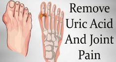 Gout is a type of arthritis, which occurs as a result of the accumulation of uric acid, which forms crystals in the joints, that form in the synovial fluid (lubricating fluid around joints) and lead to inflammation and intense joint pain. Reactive Arthritis, Yoga For Arthritis, Rheumatoid Arthritis Treatment, Knee Arthritis, Rheumatoid Arthritis Symptoms, Types Of Arthritis, Inflammatory Arthritis, Arthritis Exercises, Juvenile Arthritis