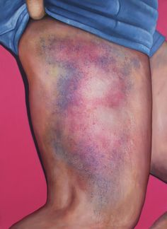 Bruised bottoms: the multicoloured markings of Roller Derby – in pictures
