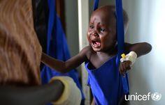 POMOC HUMANITARNA: Wspierany przez UNICEF szpital pediatryczny w Dżubie. Podczas przeglądu stanu zdrowia dziecka pod kątem niedożywienia personel medyczny dokonuje pomiaru wagi. Pomóż na www.unicef.pl/sudan.