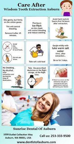 If you are Looking for wisdom tooth extraction surgeon in the USA. Sunrise Dental Auburn Specialist provides the best Wisdom Tooth Extraction treatment and procedure. Dental Surgery, Dental Implants, Dental Hygienist, Teeth Health, Oral Health, After Wisdom Teeth Removal, Dental Assistant Study, Dental Images, Dentist Day