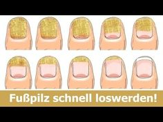 Toenail Fungus Treatments – Easy Home Remedies : Onychomycosis (Toenail fungus) is a common condition for problem many people. Some common signs include inflammation, localized swelling, nail yellowin (Beauty Nails Baking Soda) Fingernail Fungus, Toenail Fungus Remedies, Fungus Toenails, Toenail Fungus Treatment, Laser Eye Surgery Cost, Nail, Nail Polish