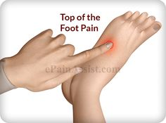Excessive walking or running or overuse of the feet can cause top of the foot pain or dorsal foot pain. Treatment depends on the severity as well as the cause of the pain. Know the effective exercises and stretches for pain on top of the foot. Plantar Fasciitis Remedies, Plantar Fasciitis Treatment, Ankle Pain, Heel Pain, Foot Pain Chart, K Tape, Foot Exercises, Stretches, Foot Pain Relief