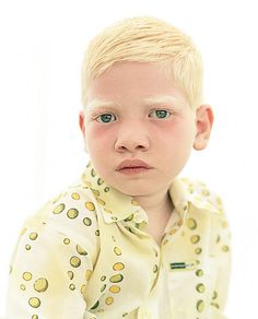 Kulshan, a boy from India with albinism, 2005. Photographer: Andreas Deffner