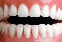 Zbavte se zubního kamene doma - Strana 2 z 2 - Příroda je lék Perfect Teeth, Health Advice, Organic Beauty, Natural Health, Health And Beauty, Diy And Crafts, Beauty Hacks, Beauty Tips, Hair Beauty