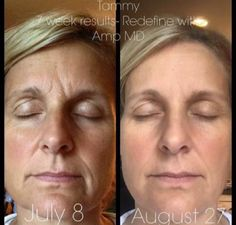 Rodan & Fields Redefine Before & After Text me or email me today! soniaklauber@gmail.com or 727-422-2515