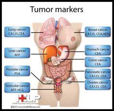 Tumor Markers: calcitonin (medullary thyroid CA); beta2 macroglobulin (lymphoma); S100 (melanoma, neural tumors); GFAP (glioma); 5HIAA (carcinoid tumor); TRAP (hairy cell leukemia); IgM (Multiple Myeloma); CA19-9 (pancreas, biliary)