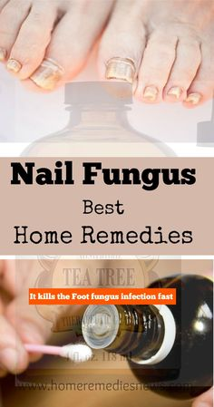Best Home Remedies for Nail Fungus Toenail fungus treatment, Tea tree oil nail fungus before and after, Essential oil for toenail fungus infection. Active formula = apple cider vinegar, hydrogen peroxide, tea tree oil and vicks vaporub www.wartalooza.co...