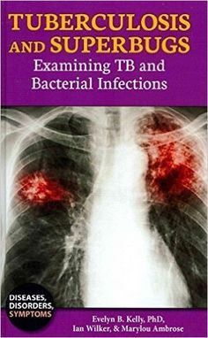 Tuberculosis and Superbugs PDF - http://am-medicine.com/2016/03/tuberculosis-superbugs-pdf.html