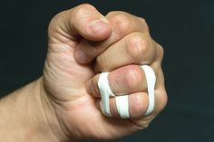 If you are X-taping first, there is no need for anchors, just tape the two fingers together, above and below the joint, over the previous tape job.