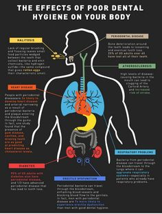 The Effects of Poor Dental Hygiene on the Body. People don't realize just how important dental hygiene really is! Dental Hygiene School, Dental Life, Dental Humor, Dental Assistant, Dental Hygienist, Oral Hygiene, Dentist Jokes, Happy Dental, Dental Quotes