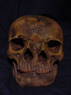 Two-Faced Skull deformity