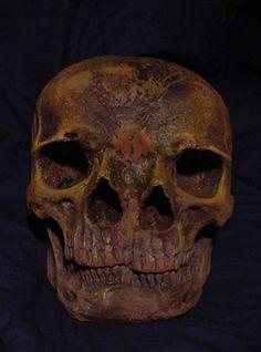 Two-Faced Skull deformity