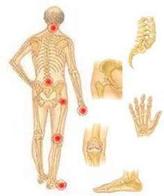 megvesz térd artrózisát