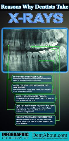 Found this today: This infographic was so well done, we couldn'nt resist posting it. If the font is too small to read here, here are the main points: * to look for decay between the teeth * check for bone loss associated with gum disease *check for decay under fillings * look for infection at the tip of the root * examine the area before procedures. #miltondental #miltondentist #miltoninf