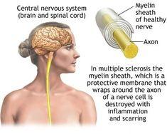 Σ κλήρυνση κατά Π λάκας ( ΣΚΠ -MS) Κώσ τ ας Βουµβουράκης Αναπληρω τ ής Καθηγητής Νευρολογίας Β Πανεπιστηµιακή Νευρολο...