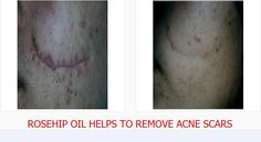 Rosehip oil for acne scars and injury scars - Improving your life health and family