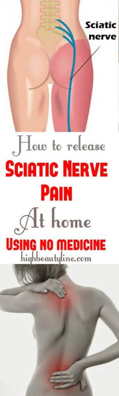 How To Release Sciatic Nerve Pain At Home Using No Medicine #NaturalRemedies