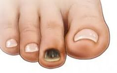 A Runners toe is an injury caused by the fact that your second toe is longer than your big Runners Toe, Nail Disorders, Nail Fungus, Fungus Toenails, Big Toe, Dark Nails, Toe Nails, Fungi, The Cure