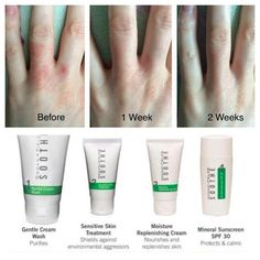 It's getting cold, which means dry skin issues are acting up for many of us. Check out fellow consultant, Abby Miller's results using the SOOTHE regimen on her Eczema - amazing results in just 2 weeks!   Rodan + Fields SOOTHE regimen is effective, yet gentle enough to deal with a number of sensitive/irritated skin issues including Eczema, redness, Psoriasis, Rosacea, burns, sunburn, razor burn, and even diaper rash.  If you or someone you know struggles with sensitive, angry