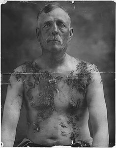 Portrait of John Meintz, who was tarred and feathered during World War I for not supporting war bond drives, 1917 - 1918.