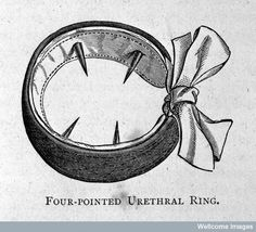 OMG!!! Four-pointed urethral ring for the treatment of masturbation   19th Century