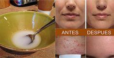 Sabías que el aceite de coco y el bicarbonato de sodio tienen numerosos beneficios y pueden transformar la piel. Este remedio rejuvenece la piel por la limpieza de los poros de la cara. Además tiene propiedades antibacterianas y actúa muy bien para la limpieza de la piel. El aceite de coco te dejará una piel …