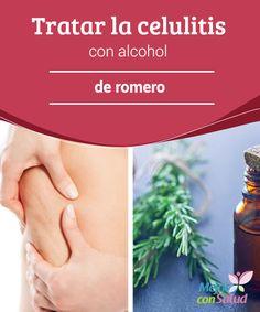 Tratar la celulitis con alcohol de romero Para conseguir efectos visibles es muy importante que apliquemos el alcohol de romero regularmente, que sigamos una rutina de ejercicio y mantengamos unos hábitos de vida saludables